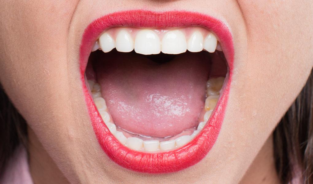 Какво представляват зъбните импланти?